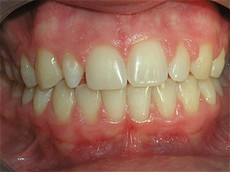 Single Tooth Veneer